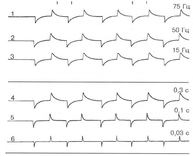 Регистрация калибровочного прямоугольного сигнала при разных значениях фильтров низких и высоких частот