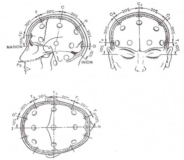 Международная схема расположения электродов «10-20».
