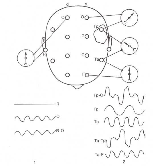 Условная схема регистрации ЭЭГ при монополярном отведении