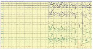 Артефакт ЭЭГ алиасинг цифрового дисплея