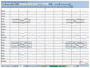 ЭЭГ, показывающее телефонный звонок в комнате с интервалами 3-4 с
