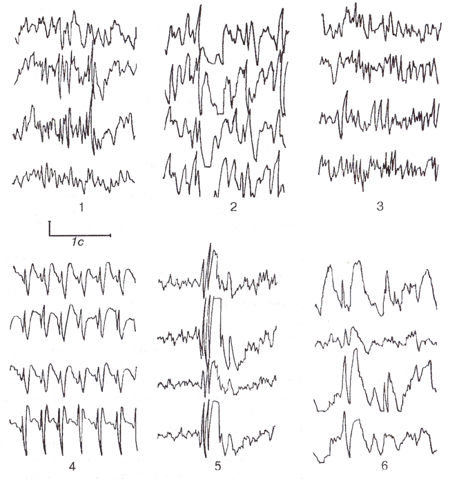 Основные типы эпилептиформной активности.