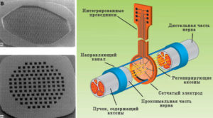 Сетчатые электроды и схема их размещения в направляющем канале