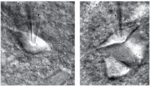 Фотографии двух нейронов в латеральной миндалине крысы