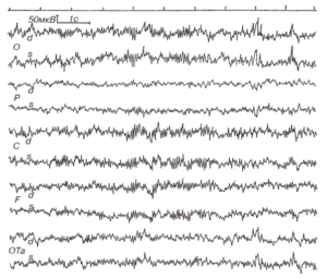 ЭЭГ при нарушении мозгового кровообращения в бассейне основной артерии