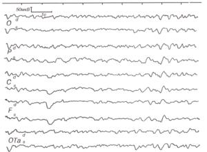 ЭЭГ больного 39 лет с краниофарингиомой, сдавливающей гипоталамические отделы.