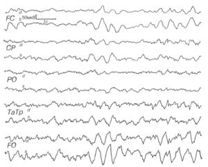 ЭЭГ при глиоме медиобазальных отделов левой лобной доли