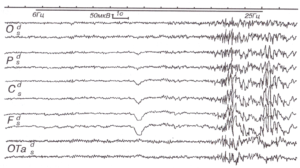 ЭЭГ при эпилепсии с генерализованными приступами