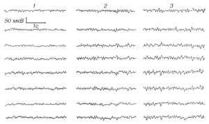 Изменение ЭЭГ в процессе трехминутной гипервентиляции у здорового взрослого.
