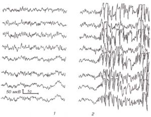 Изменения ЭЭГ при гипервентиляции у больного эпилепсией с атипичными абсансами