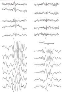 Условно-эпилептиформные феномены