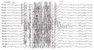Неэпилептический психогенный приступ у больной 8 лет