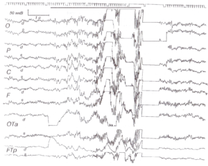 Генерализованный эпилептический миоклонический припадок