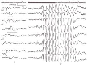 ЭЭГ при теменнодолевой эпилепсии