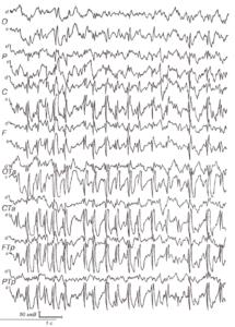 Больной 5 лет с синдромом эпилептической афазии Ландау-Клеффнера