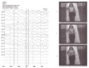 Видео-ЭЭГ-мониторинг эпилептического комплексного парциального припадка, развившегося в медленноволновой стадии сна
