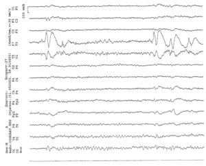 ЭЭГ пациента 27 лет с резистентными комплексными парциальными припадками с автоматизмами с эпилептогенным фокусом в левой височной доле