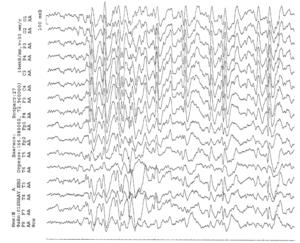 ЭЭГ пациента с рис. 70 после наращивания дозы карбамазепина до 20 мг/кг без уменьшения прежних припадков, но с присоединением коротких «атипичных абсансов» и атонических припадков
