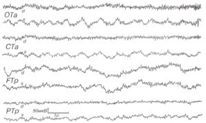 ЭЭГ при абсцессе левой передней височной области