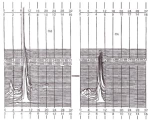 Псевдотрехмерный граф спектра мощности ЭЭГ в диапазоне 0-32 Гц здорового подростка 14 лет