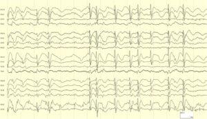 Эпилепсия с непрерывными спайк-волнами медленного сна
