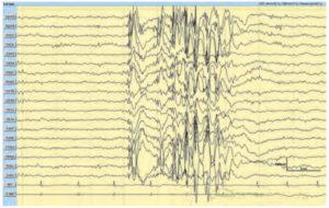 Юношеская миоклоническая эпилепсия