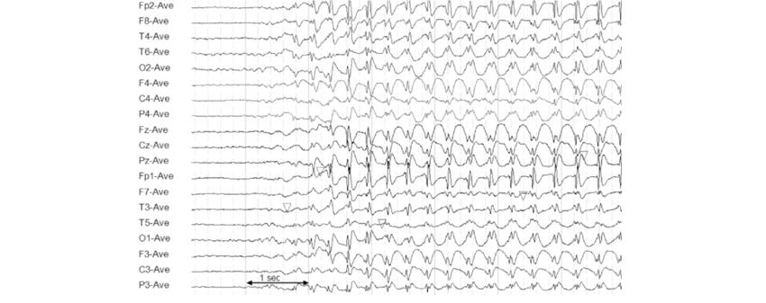 ЭЭГ, эпилеатиформная активность, эпилепсия, регулярный, транзиенты