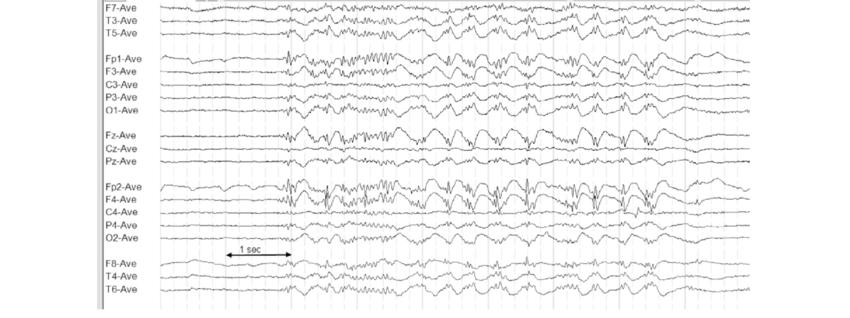 ЭЭГ, транзиенты, эпилептиформная активность, эпилепсия, нерегулярный