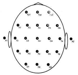 Расположение электродов на скальпе по системе 10-20