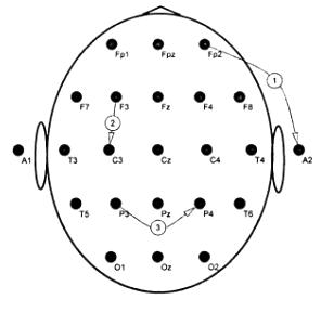 Схема организации ЭЭГ отведений