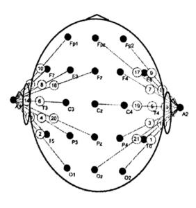 Монополярная схема отведений с ушным рефернтным электродом