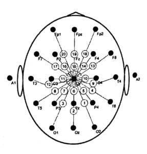Монополярная схема отведений с вертексным рефернтным электродом