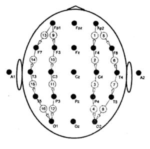 Биполярная схема отведений продольным подключением