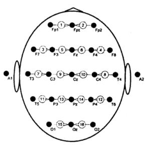 Биполярная схема отведений с поперечным подключением