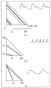 Графические модели реовазографической волны