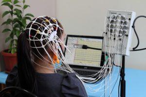 ЭЭГ с нагрузочными пробами (ритмическая фотостимуляция)