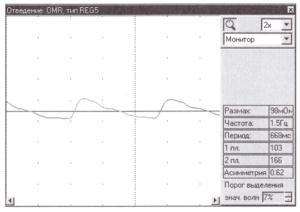 измерения размаха амплитуд РЭГ-сигнала