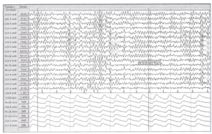 Измерение максимальных размахов амплитуд сигналов.