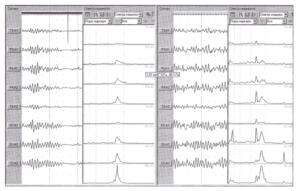 Изменения графиков спектральной плотности мощности ЭЭГ в процессе проведения фотостимуляции — 10 Гц.