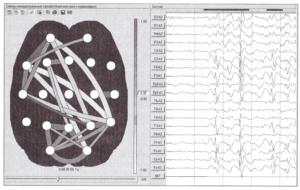 Схема значимых корреляционных связей