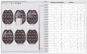 Схемы межцентральных связей по среднему уровню когерентности для фрагмента ЭЭГ