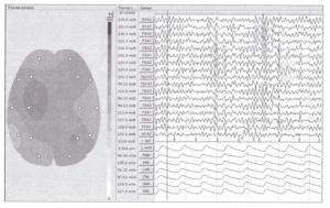 Пример топографического картирования результатов расчета максимального размаха амплитуд ЭЭГ-сигналов