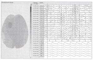Карта нормированной площади фрагмента ЭЭГ демонстрирует наибольшую выраженность доминирующей активности в левой передневисочной области.