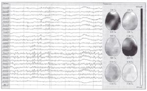 Визуализация спектральных характеристик ЭЭГ