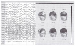 Визуализация мощностных характеристик ЭЭГ