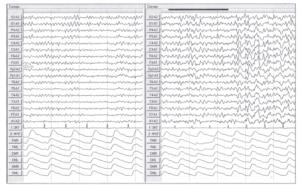 снижение мозгового кровотока в бассейне сонных артерий.