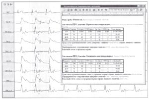 РЭГ-исследования с характеристикой пульсового