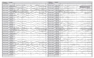 В окне слева представлен фрагмент ЭЭГ с выраженными зональными различиями в монополярной схеме отведений