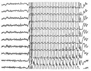 Паттерн припадка при юношеской миоклонической эпилепсии