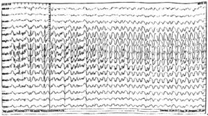 ЭЭГ больного с генерализованными судорожными приступами